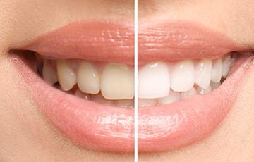 削らずに白く美しい歯に