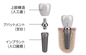 インプラントは第二の永久歯
