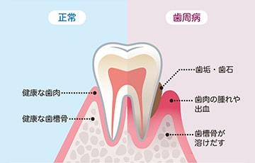 歯を失う原因の第1位は歯周病です