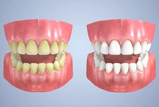 歯が白く見える