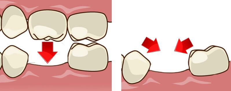 歯が1本失われると起こる影響